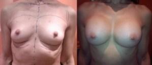 αυξητική μαστού με ενθέματα σιλικόνης
