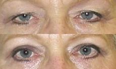Blepharoplasty,treatment in greece
