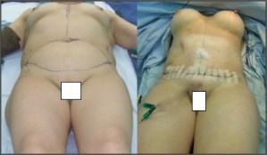 ταυτόχρονη κοιλιοπλαστική και αυξητική μαστών,χωρίς ουλές,νέα μέθοδος πλαστικής