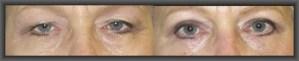 βλέφαρα άνω και κάτω, βλεφαροπλαστική,φωτογραφίες βλεφαροπλαστικής