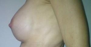 protesi mammaria,aumento volume mammela,risparmiare in chirurgia plastica,turismo medico in grecia,silicone