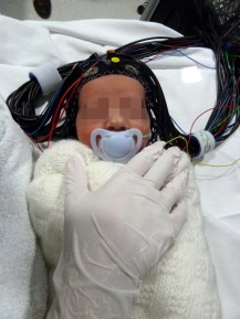 Optical-EEG cap on a healthy infant ready for scanning