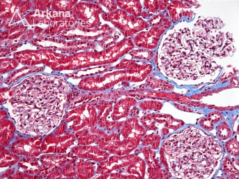 Normal Renal Cortex on Trichrome_2