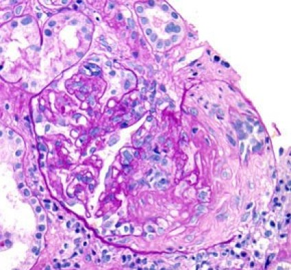 Fibrocellular Crescent Formation and Interstitial Inflammation in Lupus Nephritis on PAS