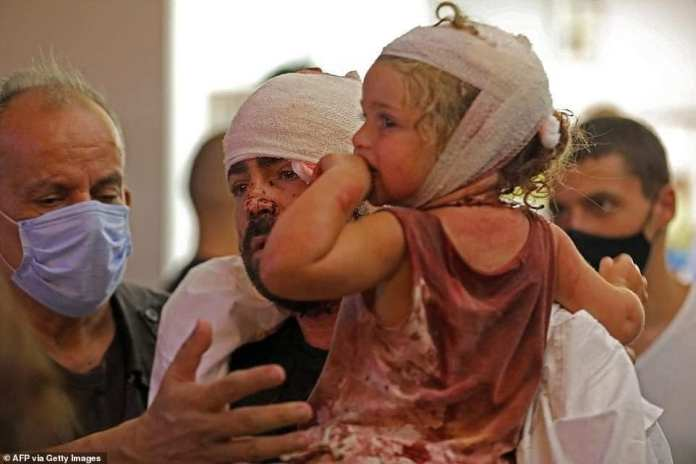 Perosn carrying a wounded child on Beirut, Lebanon
