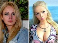 Валерия Лукьянова до и после операции