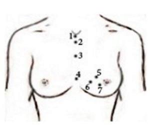 Йодовая сетка при мастопатии