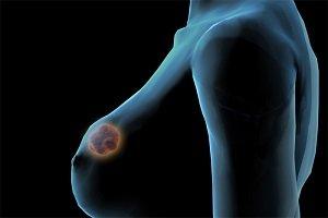 Локализованный фиброаденоматоз молочной железы: что это такое