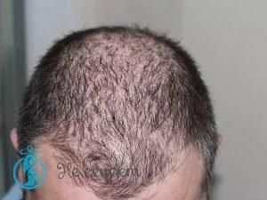 Кому показана мезотерапия волос