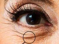 Как использовать витамин Е от морщин вокруг глаз