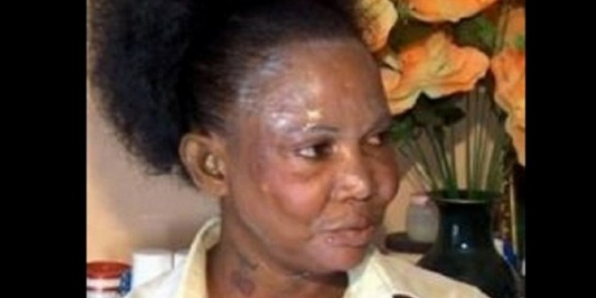 ghana elle perd la vue dans ses tentatives de se blanchir la peau rh netafrique net
