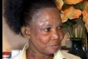 Ghana: Les femmes pour se blanchir la peau, utilisent le ciment