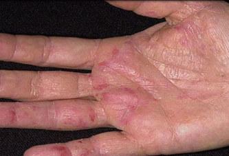 Voici comment reconnaitre les premiers symptômes d'un cancer apparaissent sur les mains !