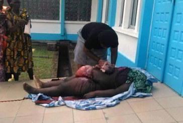 Drame au Cameroun: Elle ouvre le ventre de sa tante morte à l'hôpital par manque se soins   pour sauver ses bébés