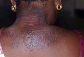 Dépigmentation : plaire aux hommes en décapant sa peau