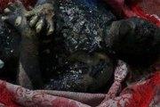 Koumassi : Un jeune homme électrocuté meurt en voulant sauver son chat.