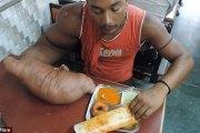 Atteint d'une maladie rare, le bras droit de cet homme pèse plus de 20 kilos (vidéo)