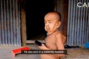 Une étrange maladie transforme un enfant en vieillard