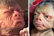 (Photos / vidéo) Le nouveau-né ressemble à un vieillard de plus de 80 ans...