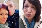 Il mord le visage de son ex 21 fois pour qu'elle ne plaise plus aux hommes