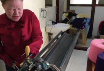 Cette femme albinos sans bras, possède une usine de tissage. Découvrez sa terrible mésaventure!
