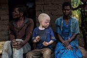 Mozambique: un albinos assassiné, son cerveau emporté  Facebook