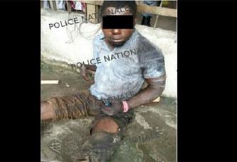 Côte d'Ivoire: Un voleur handicapé d'une main pris en flagrant délit de vol