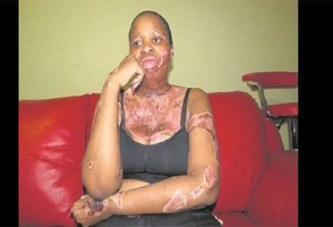 Elle s'immole après avoir surpris son mari en train de la tromper