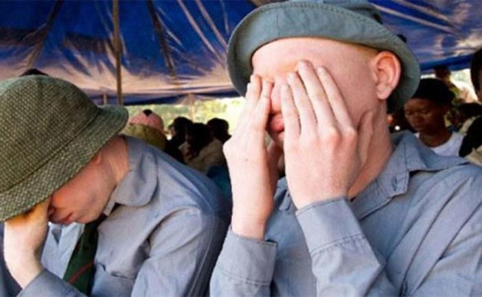 Malawi: Les albinos réclament justice