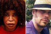 Son ex-petite-amie le défigure à l'acide : il va se faire euthanasier en Belgique