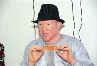 « Le cancer est en train de ravager la population albinos du Sénégal… »