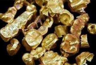 Le patron de pompes funèbres volait les dents en or des cadavres