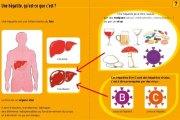 L'hépatite B entraîne plus de dommages que l'infection à VIH