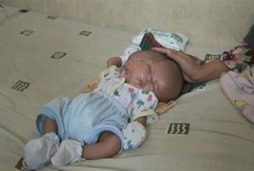 Indonésie : Un bébé naît avec deux visages, deux cerveaux et une seule tête (vidéo)