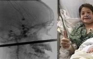 Une brochette transperce le crâne d'un enfant : il survit miraculeusement