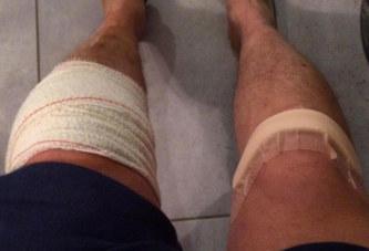 Le chirurgien d'Amiens s'est trompé de genou