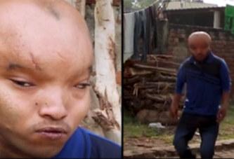Inde : Un homme à la tête « d'alien » recherche l'amour (photos)