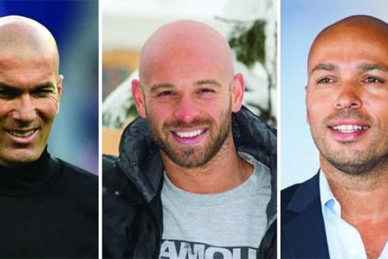Les hommes chauves sont plus attirants et plus masculins d'après les scientifiques