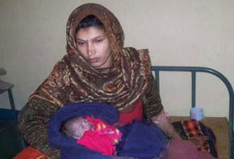 Un bébé indien naît avec le coeur hors du corps