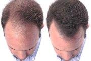 Vidéo - Chute de cheveux : un traitement trouvé pour lutter contre la calvitie ?