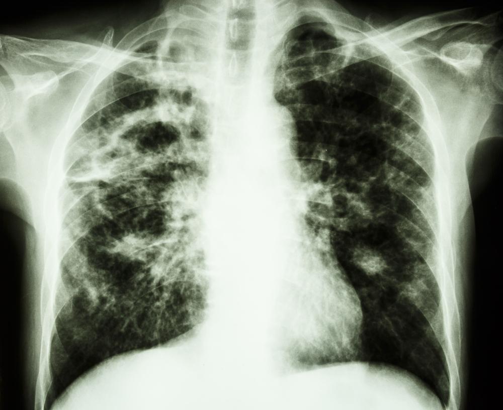 Penyakit TBC Yang Mematikan