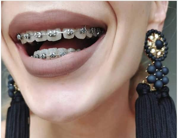 How much do braces cost in South Africa 2020? Find it out here