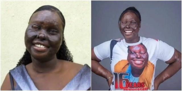 Acid survivor celebrates 16 years of being alive after accident