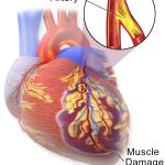 Heart Attack: Still a Concerning Topic