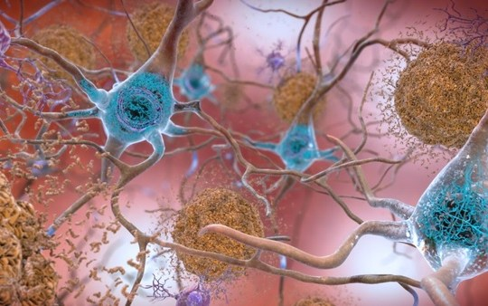 Aducanumab: FDA approved new drug against Alzheimer's disease after two decades