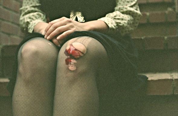 skinned knee by Geneviève Bjargardóttir