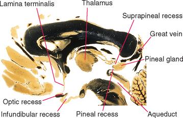 the human brain in photographs and diagrams 5 circle venn diagram generator ventricles cerebrospinal fluid | neupsy key