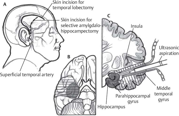 Temporal Lobectomy and Selective Amygdalohippocampectomy