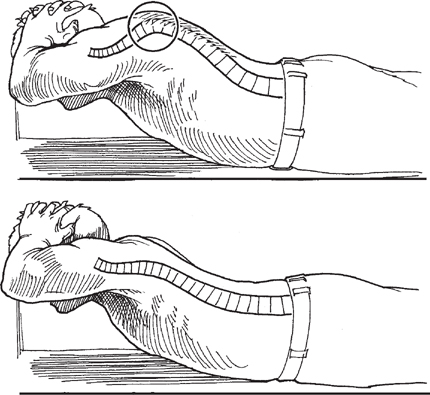 How to distinguish between structural kyphosis and