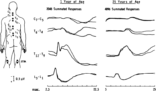 Clinical Neurophysiology of Tethered Cord Syndrome and